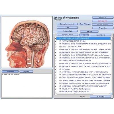 Software Bioscan
